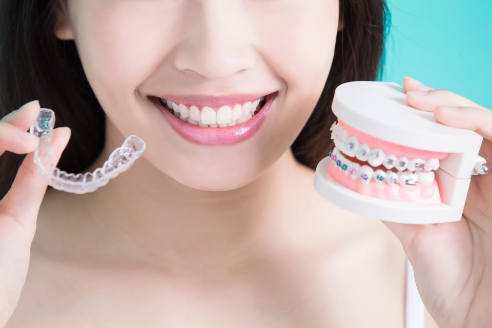Know About the Invisalign Treatment and Its Benefits
