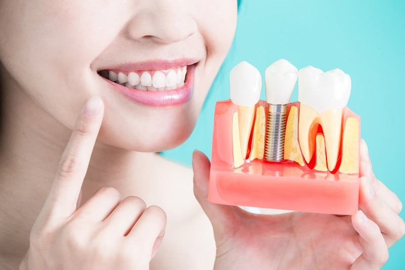 Benefits of Going for Adult Orthodontic Treatment