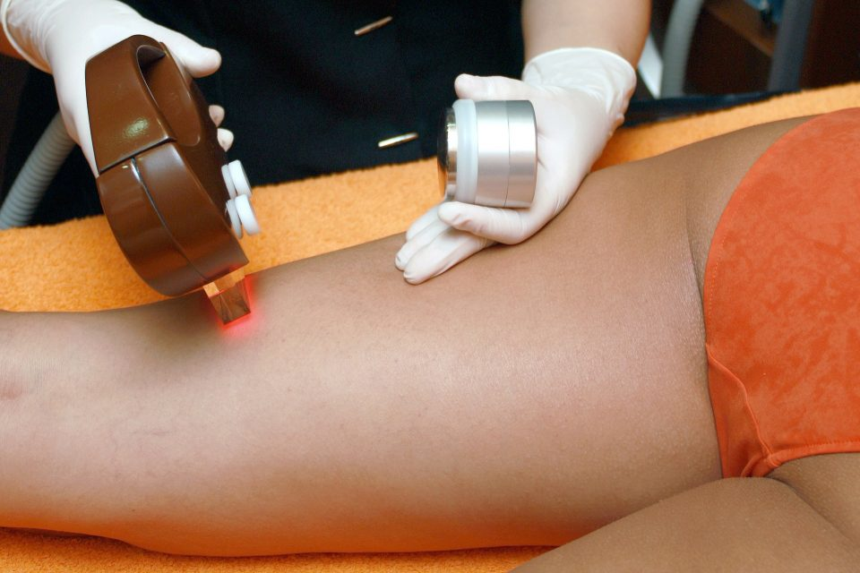 What to Do Before an Electrolysis Hair Removal Procedure