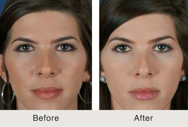 Womens right age for a mini facelift - WBO