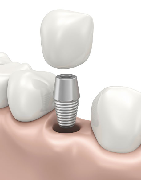 dental-implant-thumb-1
