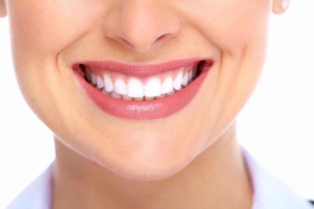 Full Mouth Porcelain Dental Implants And Veneers - WBO