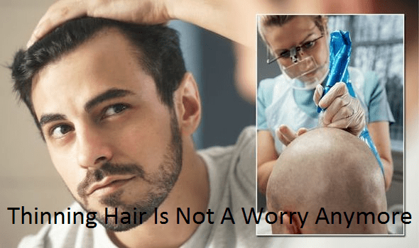 Thinning hair is not a worry anymore with the latest in pigmentation therapy
