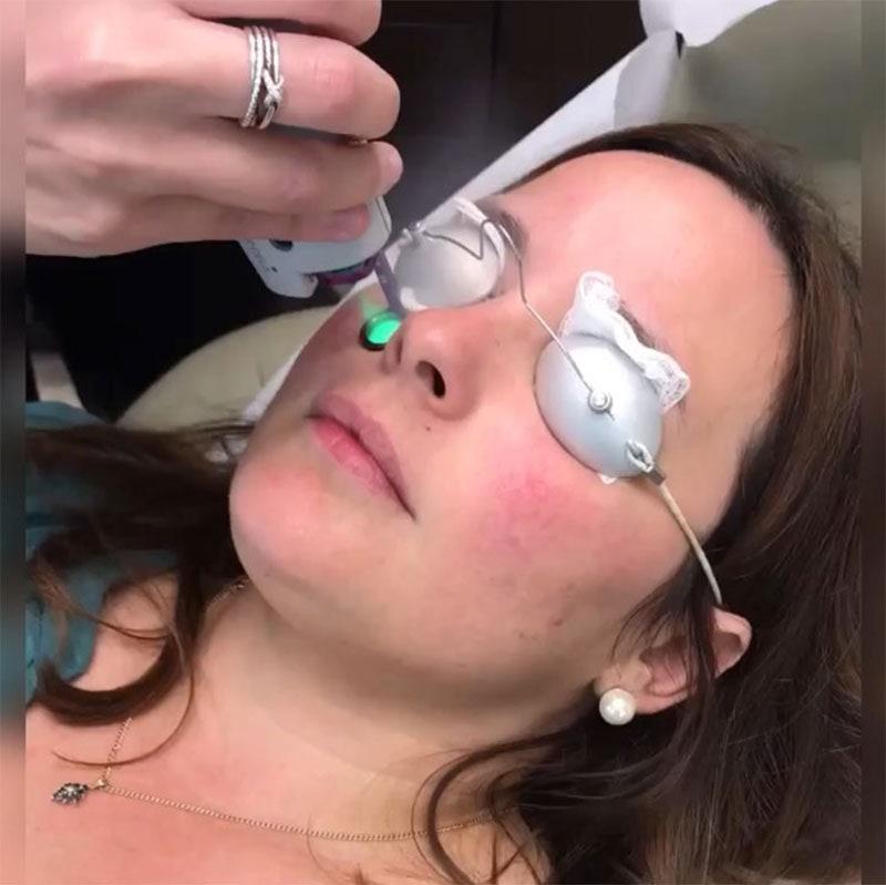 Fractional Resurfacing: Restoring Skin with Sharp Light.