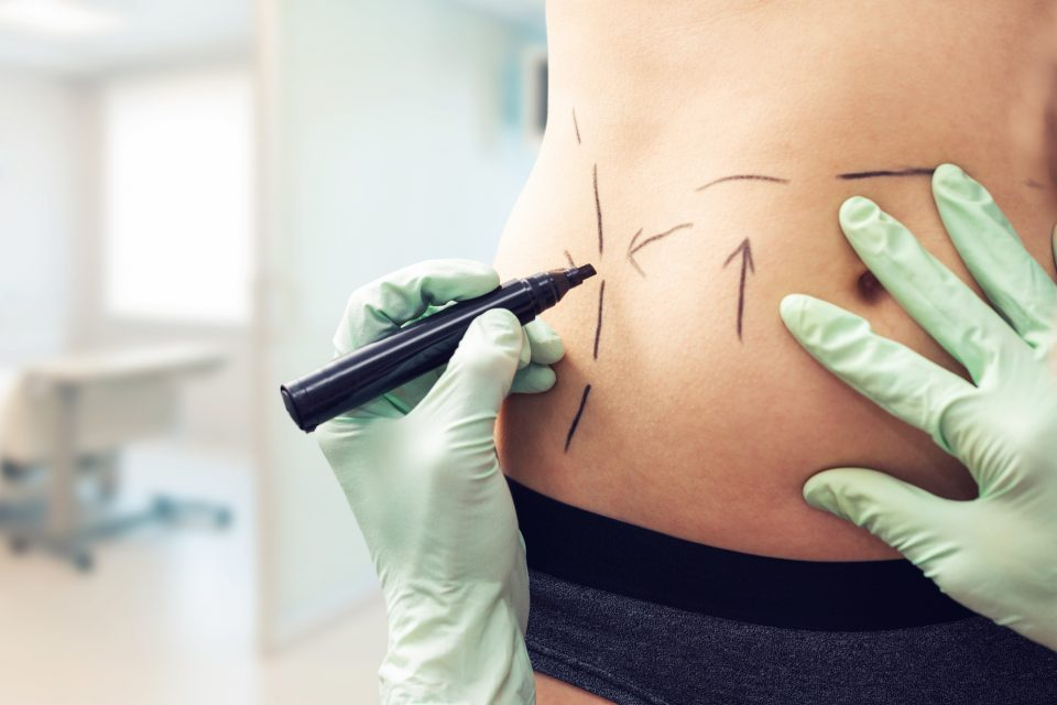 Tummy Tucks: What to Know Before Scheduling the Procedure.