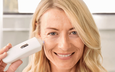 Hyperpigmentation 101: What Is It & How to Treat It?