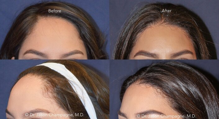 What You Need to Know About Forehead Reduction Surgery