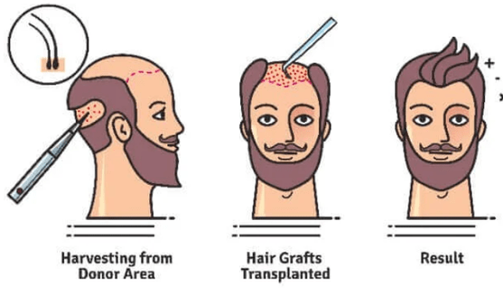 Are you thinking of getting a hair transplant?