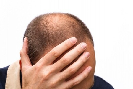 Is baldness contributing to a lack of self-esteem?