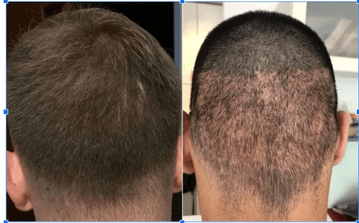 Surat's Best FUE Hair Transplant