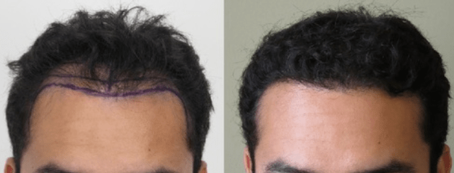 Are you thinking about getting a hair transplant