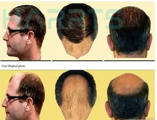 Why you should consider hair transplantation